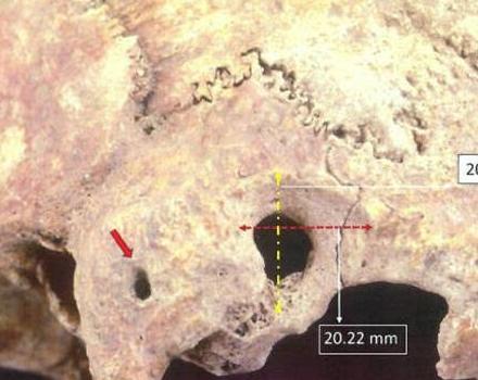 Θάσος: Ανακαλύφθηκε κρανίο πρωτοβυζαντινής περιόδου με ίχνη πολύπλοκης χειρουργικής επέμβασης